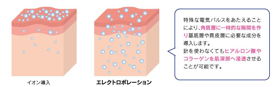 特殊な電気パルスを与えることにより、角質層に一時的な隙間を作り基底層や真皮層に必要な成分を導入します。ハリを使わなくてもヒアルロン酸やコラーゲンを肌深部へ浸透させることが可能です。